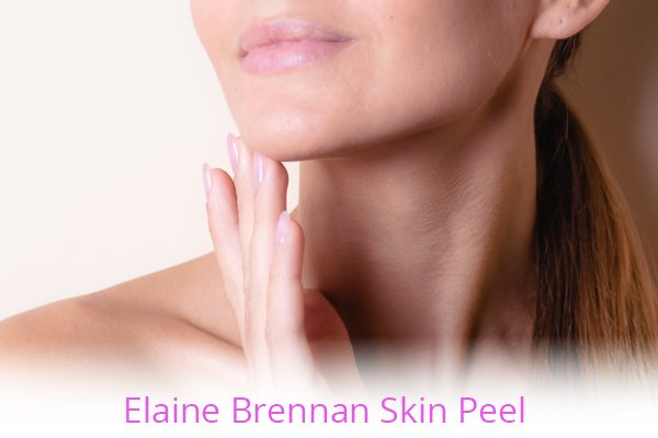Elaine Brennan Skin Peel with Elite Laser Aesthetics