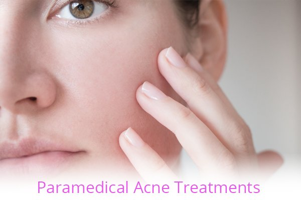 Paramedical Acne Treatments with Elite Laser Aesthetics
