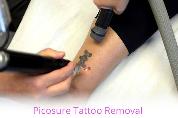 Picosure Tattoo Removal with Elite Laser Aesthetics